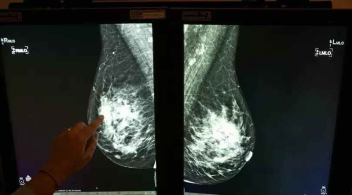 Google Health's AI can spot breast cancer missed by human eyes